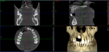 Coupes 3D - Radiographie dentaire