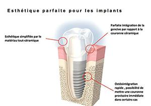 Chirurgie pré-implantaire à Salon de Provence