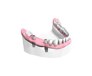 Remplacer plusieurs dents absentes ou abîmées à Salon de Provence