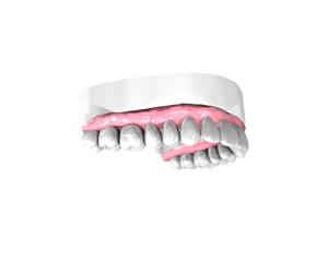 Remplacer une dent absente à Salon de Provence